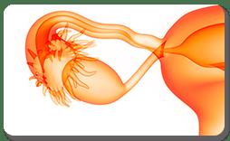 Criopreservação do Tecido Ovariano