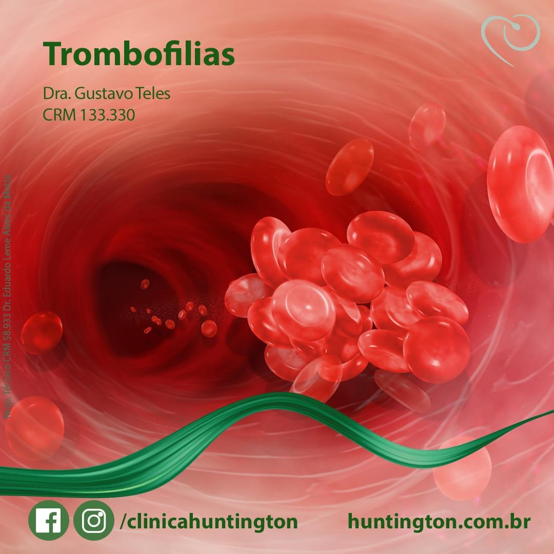 Trombofilias_Dr.Gustavo